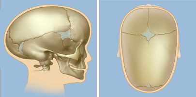 Image Gallery sagittal synostosis