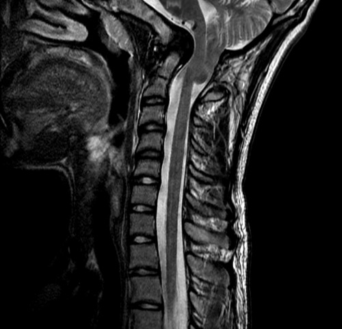 Basilar invagination with Chiari malformation, pre-surgery