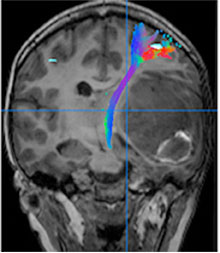 Advanced tractography for metastatic brain tumor