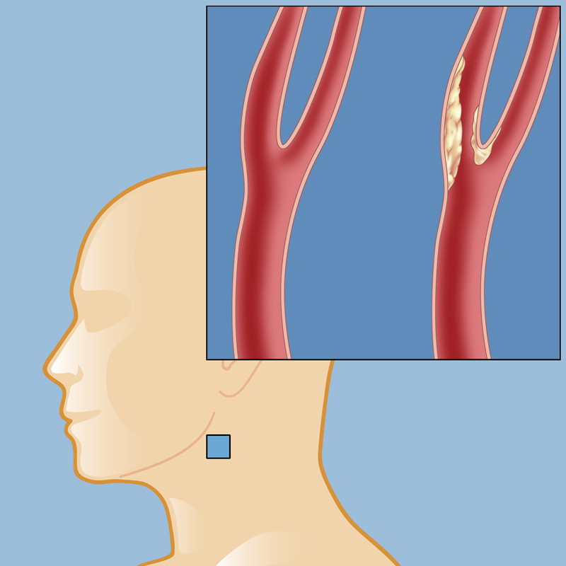 Carotid Occlusive Disease Weill Cornell Brain And Spine Center