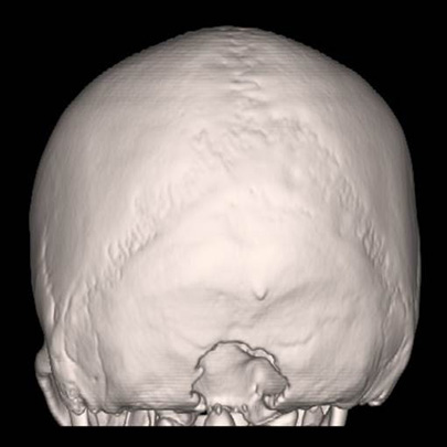 Taken after minimally invasive decompression surgery, this CT scan shows the area where bone was removed.