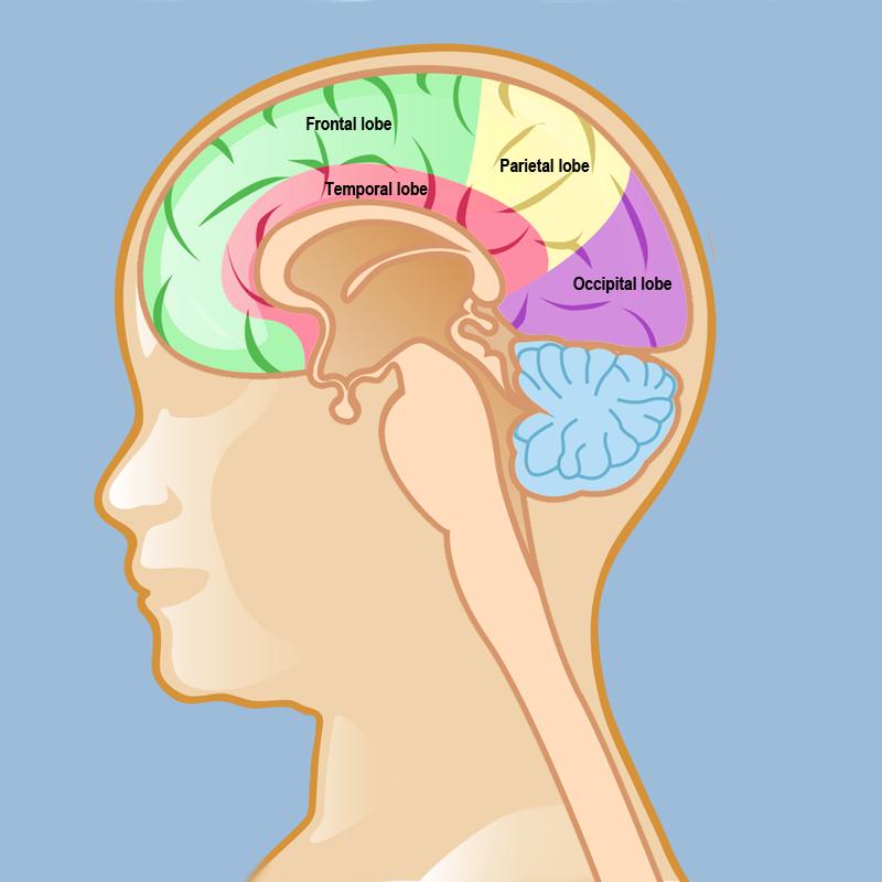 Gliomatosis Cerebri Weill Cornell Brain And Spine Center