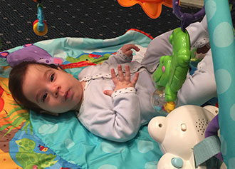 David Sarway was diagnosed with craniosynostosis at four months
