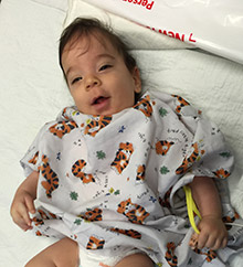 David Sarway before surgery for craniosynostosis