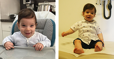 David Sarway Craniosynostosis before and after