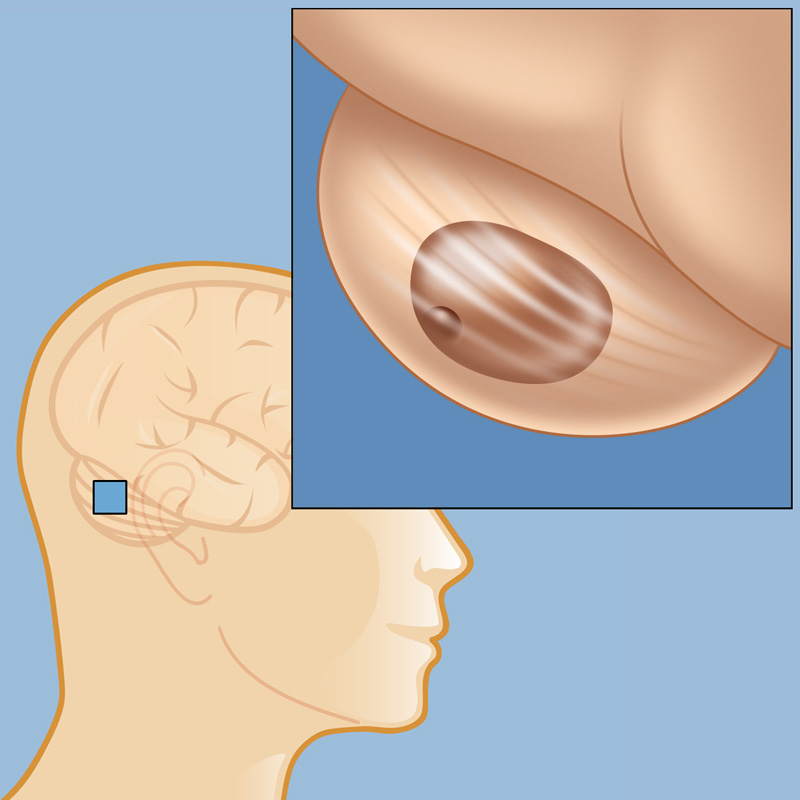 Vascular Brain Tumors | Weill Cornell Brain and Spine Center