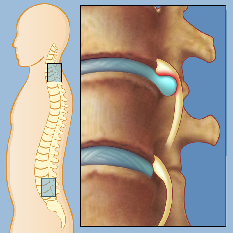 herniated disc | weill cornell brain and spine center, Human Body