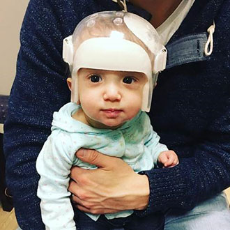 Kennedy McConnell in her helmet after endoscopic surgery for craniosynostosis