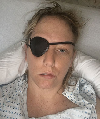 Keri Mahe wore an eye patch at first after surgery to repair her cavernous malformation