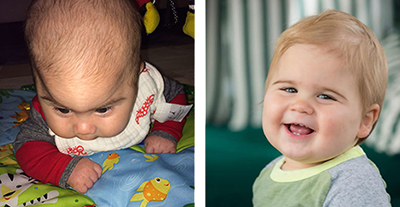 Leo Schwadron Craniosynostosis before and after
