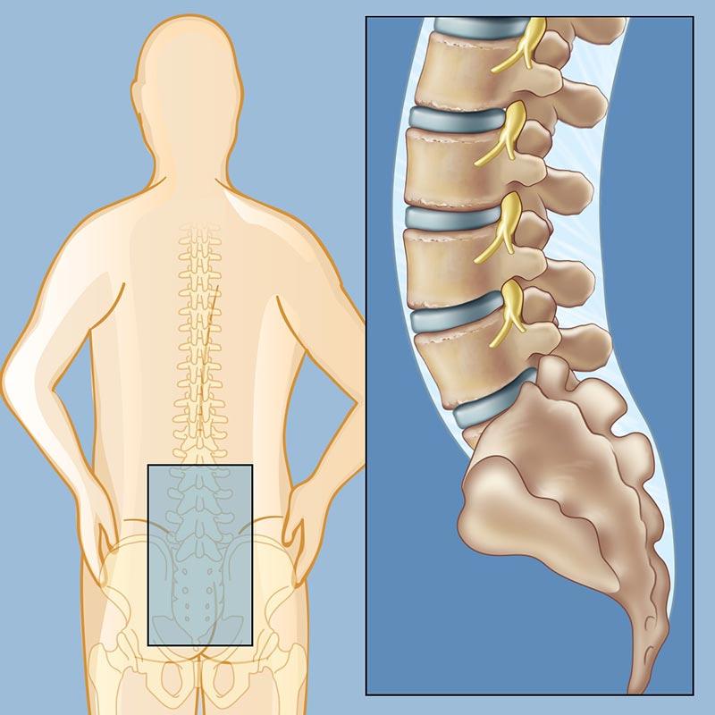 Резултат с изображение за low back pain