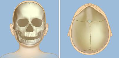 Symptoms of Craniosynostosis   Weill Cornell Brain and Spine