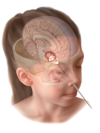 pediatric skull base and pituitary surgery weill cornell brain and