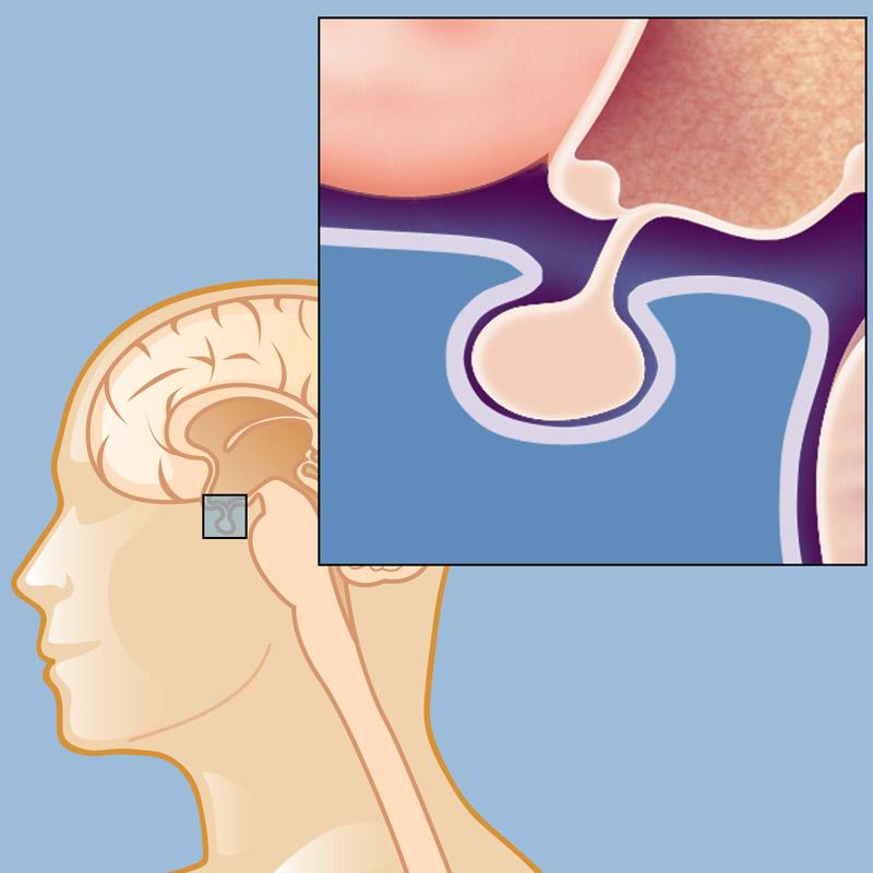 tumor on pituitary gland treatment