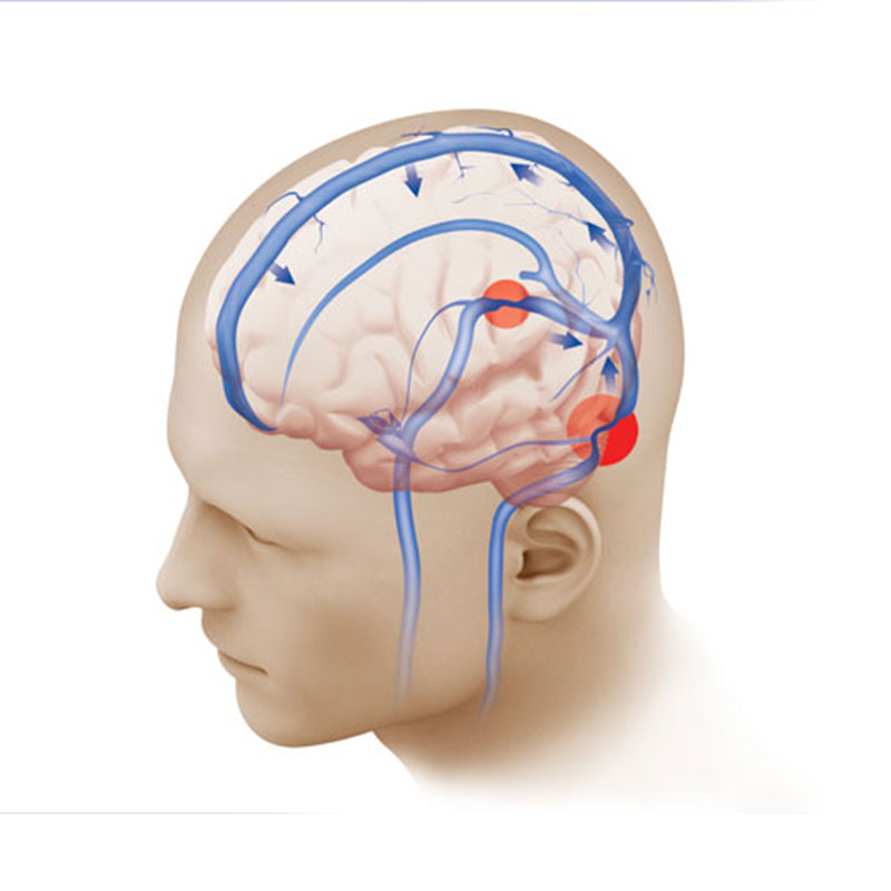 A Patient's Story: Pulsatile Tinnitus, Solved | Weill Cornell Brain