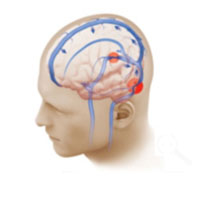In a normal brain, there is unobstructed blood flow from the brain towards the neck (blue arrows).