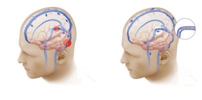 The illustration at left shows bilateral venous sinus narrowing (red circles), which compromises blood flow from the brain to the neck, contributing to intracranial hypertension. In the illustration at right, the narrowing has been treated with placement of a stent. As a result the blood flow from the brain to the neck is now restored (blue arrows), relieving the increased intracranial pressure and the symptoms of pseudotumor cerebri.
