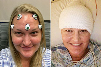 Rachel Lindquist before and after her awake craniotomy