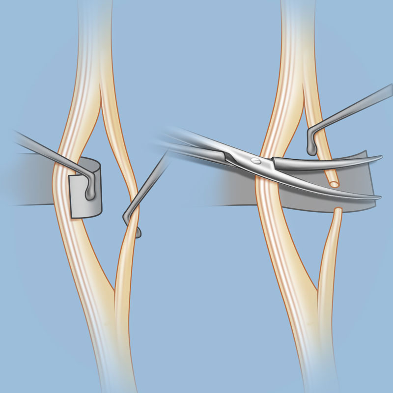 surgery for spasticity | weill cornell brain and spine center, Skeleton