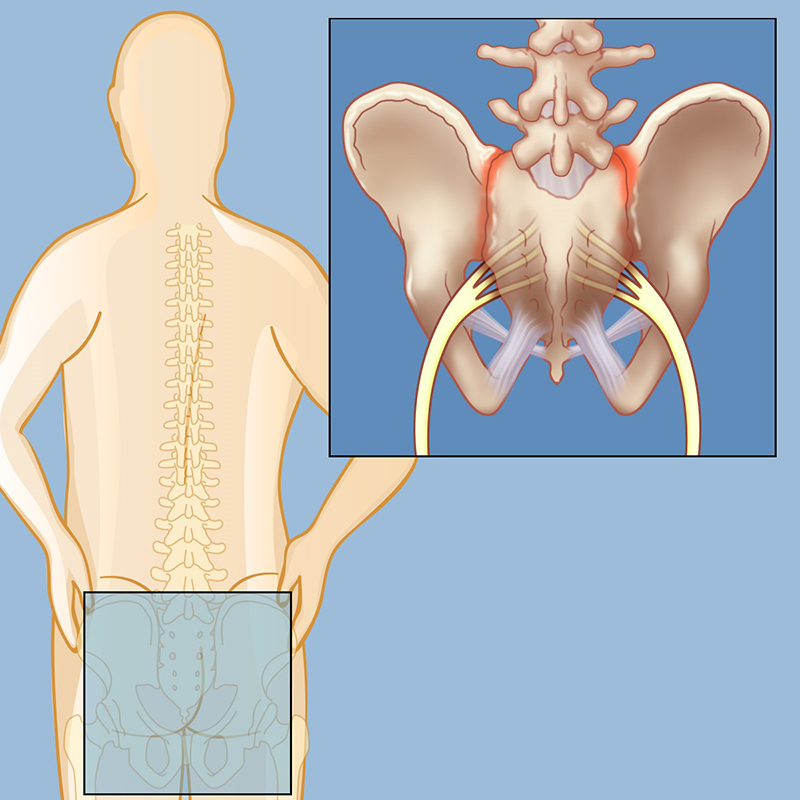 Sacroiliac Joint Dysfunction | Weill Cornell Brain and Spine Center
