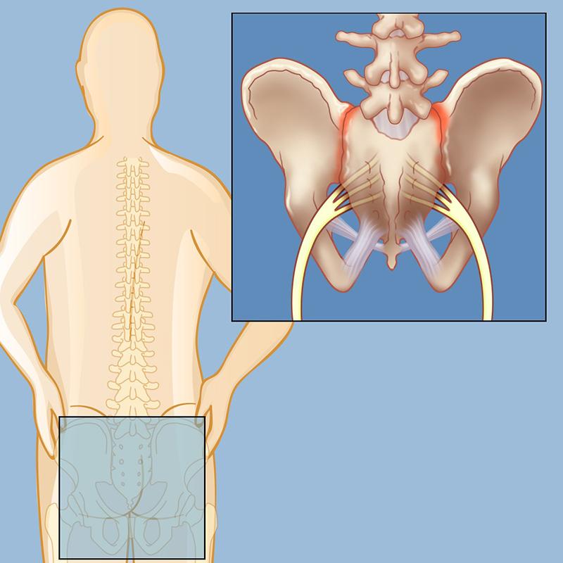 how mean is sacroiliac communal pain
