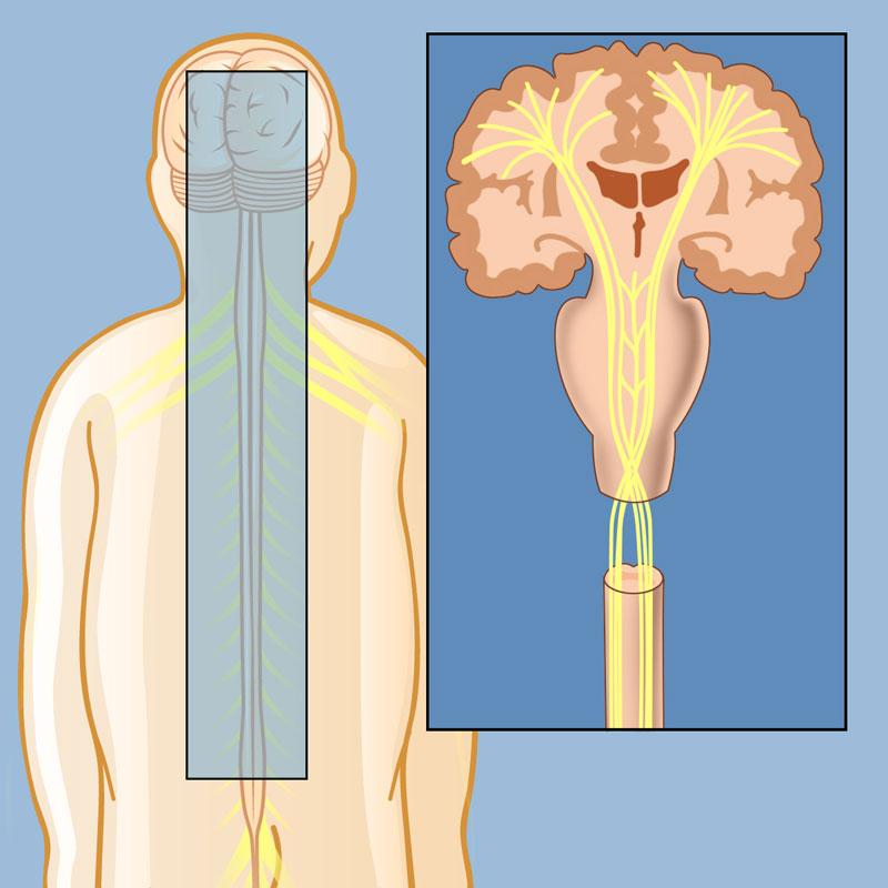 Spasticity   Weill Cornell Brain and Spine Center