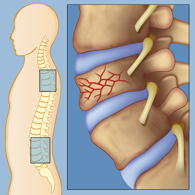 Spinal Compression Fractures | Weill Cornell Brain and Spine Center