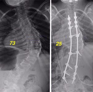 Bethany's spine scans, before and after