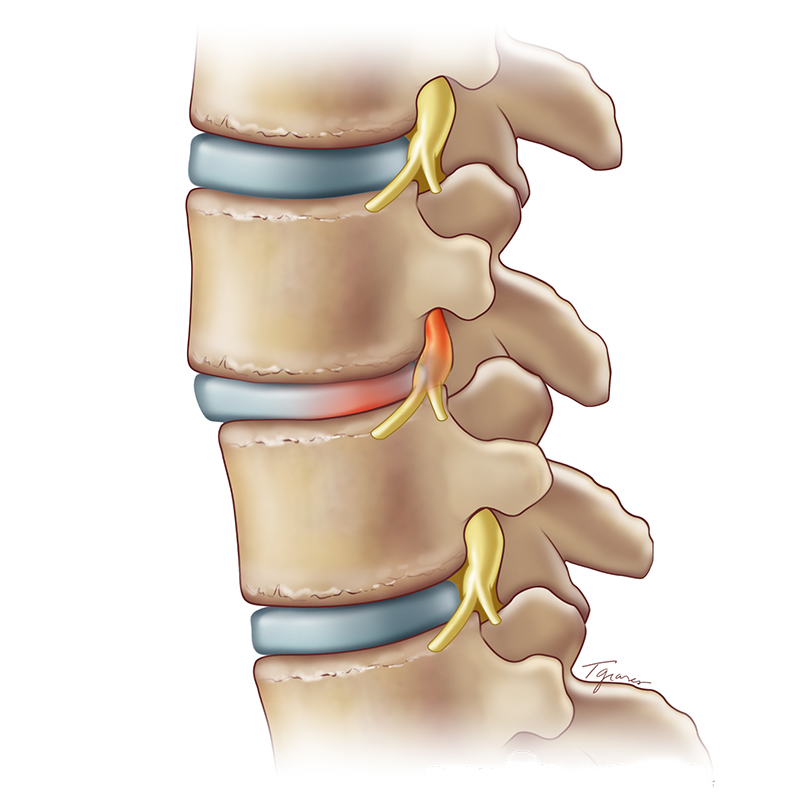 Spondylolisthesis Weill Cornell Brain And Spine Center