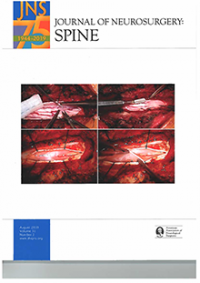 JNS Spine Aug 2019 Cover: Arachnoid Web of the Spine: A Systematic Literature Review