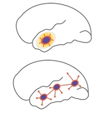 Classical, Jacksonian-like focal seizure propagation. The purple zone is the ictal core, surrounded by the ictal wavefront (orange), slowly expanding toward adjacent cortical circuitry. The yellowish area surrounding the ictal core represents the 'ictal penumbra', an area that receives massive synaptic barrages from the ictal core and demonstrates epileptiform EEGs but has not been recruited into the seizing territory. B. The epileptic network. Several disparate ictogenic zones (purple) are recurrently conn