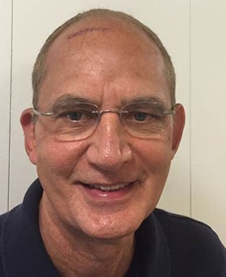 Dr. Richard Colletti shortly after colloid cyst surgery with Dr. Mark Souweidane
