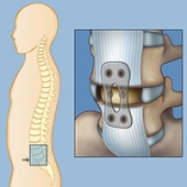 In an anterior lumbar interbody fusion (ALIF) procedure, the neurosurgeon makes the incision on the front (anterior) side of the patient.