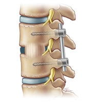 "In a TLIF fusion, the vertebra are repositioned with a small ""cage"" inserted between them. Rods and screws hold the cage in position."