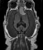 Axial view of a dog with a brain tumor