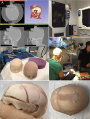 Developing a 3D Composite Training Model for Cranial Remodeling