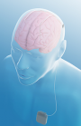 Deep Brain Stimulation Now Available for Epilepsy - Medtronic bilateral activa