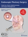 Endoscopic Pituitary Surgery: Endocrine, Neuro-Ophthalmologic and Surgical Management