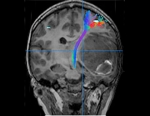 Tractography image of a metastatic brain tumor
