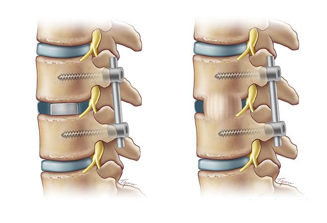 TLIF Minimally Invasive Spine Fusion   Weill Cornell Brain ...