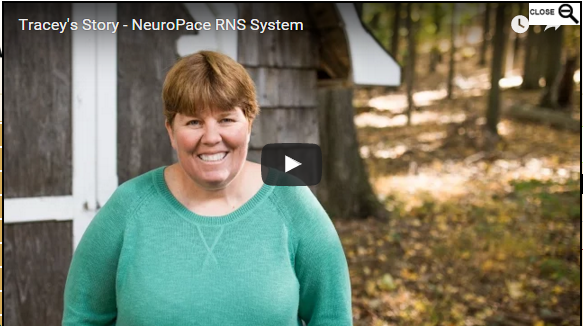 Tracey's Story: Neurostimulation Implant for Epilepsy