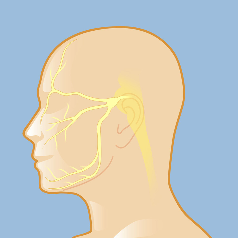 Trigeminal Neuralgia | Weill Cornell Brain and Spine Center