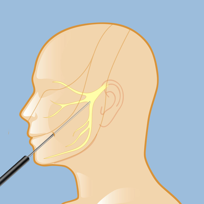 facial neurostimulation Atypical pain