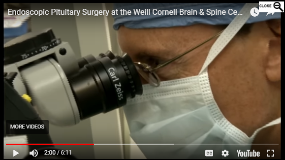 Endoscopic Pituitary Surgery at the Weill Cornell Brain & Spine Center