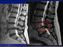 The Role of Microsurgery and Navigation in Minimally Invasive Spinal Surgery